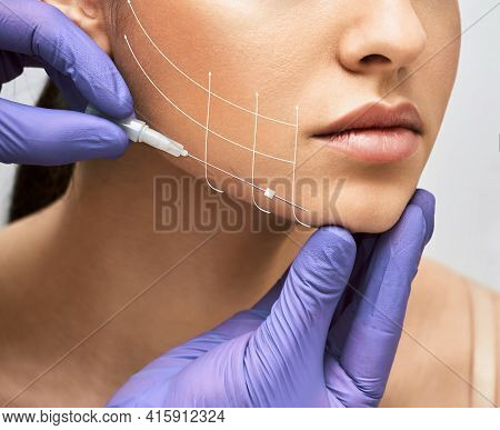 Facial Lifting Thread. Thread Facelift With Arrows On Face For Womans Skin, Procedure Facial Contour