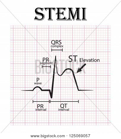 ECG of ST elevation myocardial infarction ( STEMI ) and detail of ECG ( P wave , PR segment , PR interval , QRS complex , QT interval , ST elevate , T wave ) Acute coronary syndrome , angina pectoris