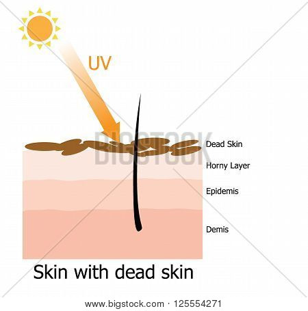 Infographic about dead skin with hair on human skin by UV ray