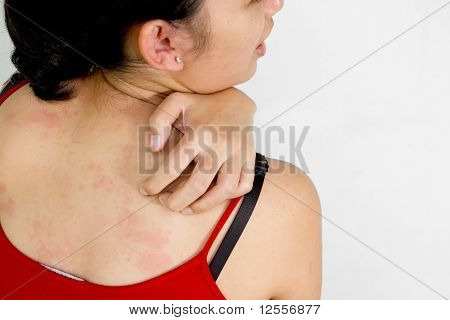 Woman Scratch Her Back With Itchy Skin