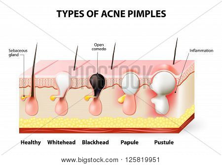 Types of acne pimples. Healthy skin Whiteheads and Blackheads Papules and Pustules