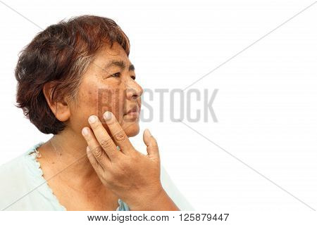 old rural woman with blemish , acne , mole and wrinkle on her face ( anti-aging concept )