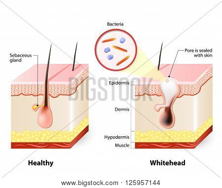 Types of acne pimples. Healthy skin, Whiteheads and Blackheads, Papules and Pustules poster