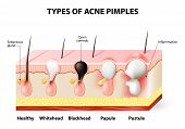 Types of acne pimples. Healthy skin Whiteheads and Blackheads Papules and Pustules poster