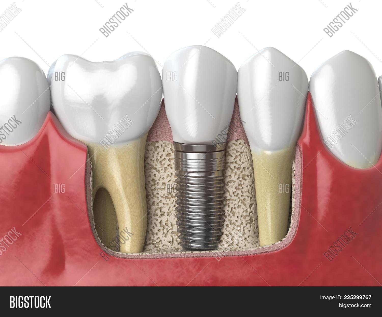 Anatomy Healthy Teeth Image & Photo (Free Trial) | Bigstock