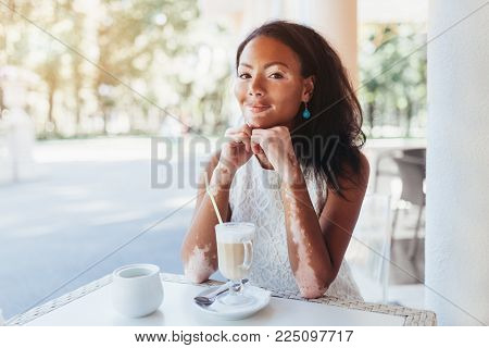 Beautiful African Girl In Studio With Skin Problems