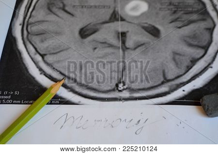Dementia illness and disease as a loss of brain function and memories as alzheimers as a medical hea