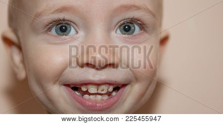 A Child With A Black Hole In Her Teeth, Her Teeth In A Little Smiling Boy.