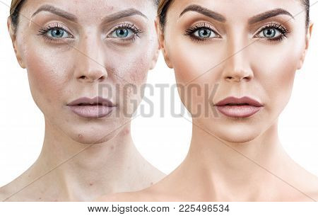 Woman With Acne Before And After Treatment And Make-up. Skin Care Concepts