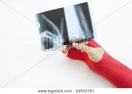 Bandaged Hand And X-ray Print