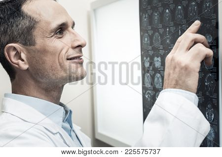 Professional Diagnostics. Nice Pleasant Professional Neurologist Looking At The X Ray Scan And Point