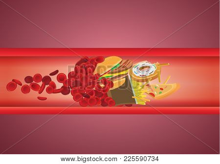 Blood Flow Blocked From Fast Food Which Have High Fat And Cholesterol. Illustration About Unhealthy