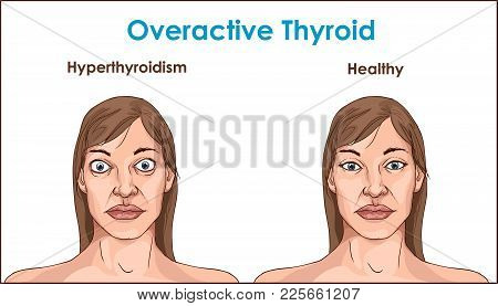 Face Of An Adult Female Exhibiting The Symptoms Of Hyperthyroidism.
