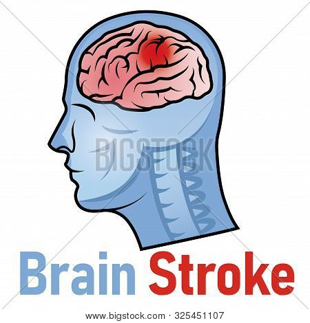 Vector Illustration Of World Stroke Day With Red Epicenter