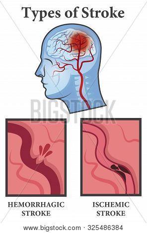 Vector Illustration Of Brain Stroke Types. Ischemic And Hemorrhagic Types Poster.