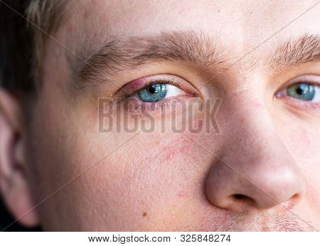 Selective Focus On Swollen And Painful Red Upper Eye Lid With Onset Of Stye Infection Due To Clogged