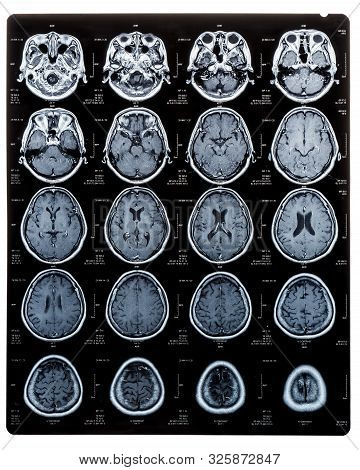 Brain Scan Image On Magnetic Resonance Imaging (mri) Film Of Elderly Patient Isolated (clipping Path