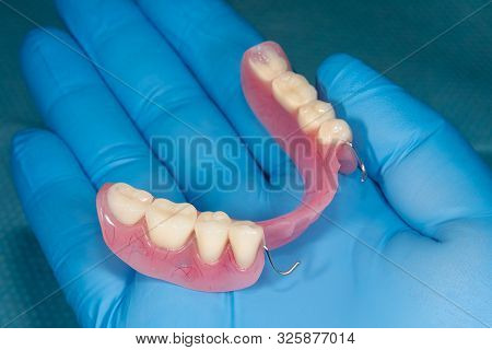 Denture. Partial Removable Denture Of The Lower Jaw Of A Person With White Beautiful Teeth In The Ha