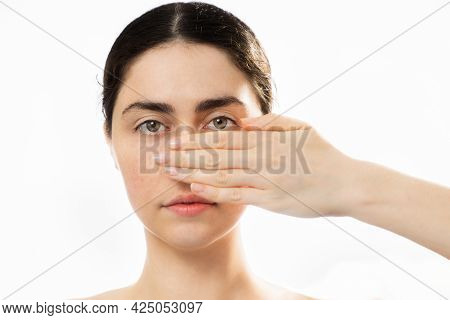Plastic Nose Surgery. Portrait Of Young Caucasian Woman Cover Her Nose With Hand, Isolated On White