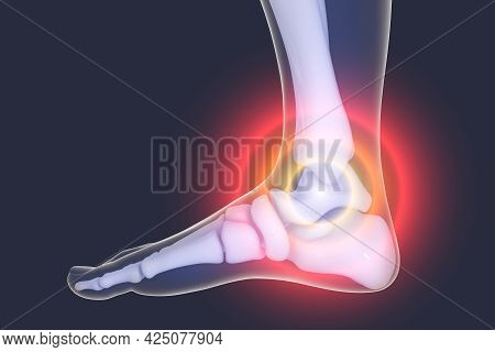 Foot And Ankle Pain, 3D Illustration