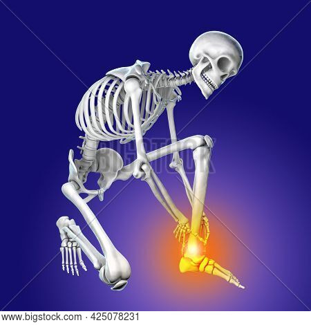Foot And Ankle Pain, Conceptual 3D Illustration