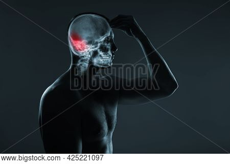 X-ray Of A Man's Head. Medical Examination Of Head Injuries. Cerebral Stroke. The Back Of The Brain