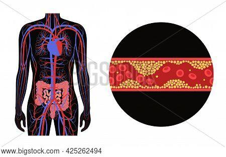 Mesenteric Ischemia, Cholesterol In Human Blood Vessels. Colitis In Intestine. Fat Cells In Vein Art