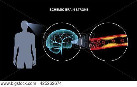 Ischemic Brain Stroke, Arteriosclerosis. Infarct, Tia, Cva Concept. Cholesterol In Blood Vessel. Fat