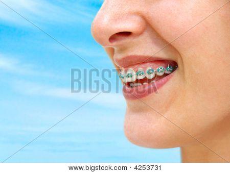 Turquoise Braces