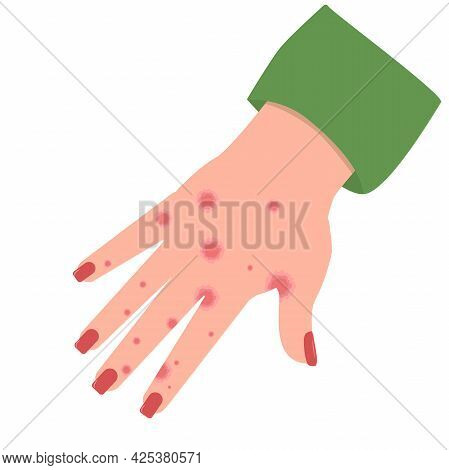 Vector Illustration Of A Hand With Spots Of Eczema Or Contact Dermatitis, Isolated On A White Backgr
