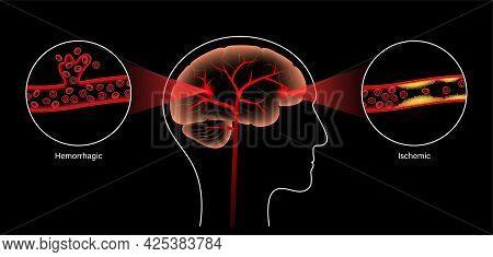 Brain Stroke, Hemorrhagic And Ischemic Problem. Arteriosclerosis, Infarct, Ischemia, Thrombosis Dise