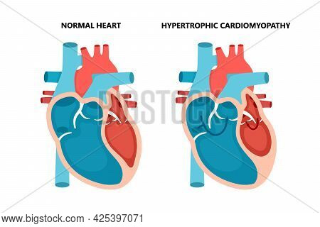 Hypertrophic Cardiomyopathy With Cross-section View. Human Heart Muscle Diseases. Cardiology Concept