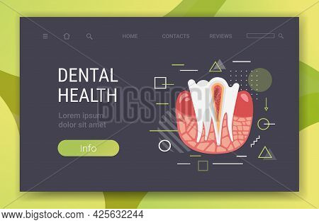 Anatomy Of Human Tooth Structure Nerve Endings Cross Section For Medical Dental Clinic Dentist Medic