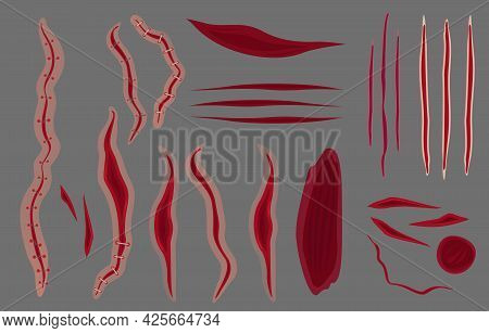 Vector Illustration Set Of Stitches, Scars On Grey Background. Bruise And Slaughters Collection In F