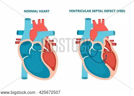 Ventricular Septal Defect Vsd. Human Heart Muscle Diseases Cross-section. Cardiology Concept.