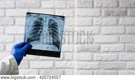 X-ray Of The Human Chest In The Hands Of A Doctor, X-ray Of The Lungs. The Doctor Diagnoses Pneumoni
