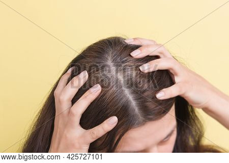 The Woman Shows Gray Hair On Her Head. Hair With Fragments Of Gray Hair Requiring Coloring On A Yell
