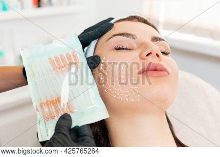 Facial Lifting Thread. Thread Facelift With Arrows On Face For Woman's Skin, Procedure Facial Contou
