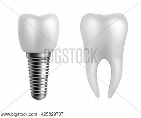 Dental Implant And Teeth. Realistic Orthodontic Elements. Human White Enamel Tooth Crown, Dentistry