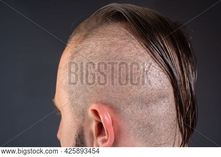 Close Up Male Haircut. Hairstylist Bold Head. Barbershop Concept. Man Barber Hairstylist.