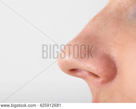 The Girl Has A Long Nose, Close-up. Nose Reduction Plastic Surgery Concept, Copy Space For Text, Oto