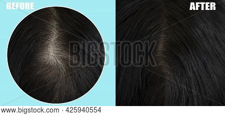 Woman Head Hair Baldness Before And After Treatment