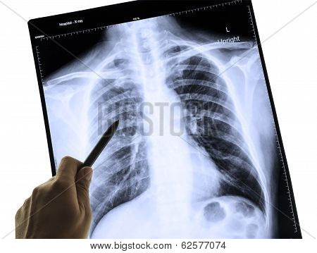 X-ray Image Of Human Chest For A Medical Diagnosis And Hand Pointing