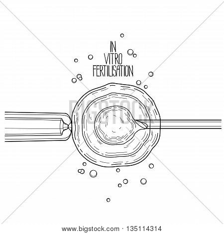In vitor fertilisation. Artificial insemination. Graphic medical illustration. Vector design isolated on white background. Coloring book page design for adults and kids