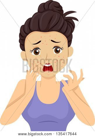 Illustration of a Teenage Girl Having a Pimple Breakout
