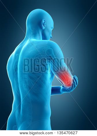 3d rendered, medically accurate 3d illustration of elbow pain