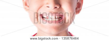close up of kid toothless with smiling