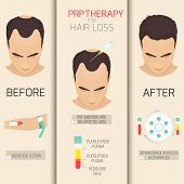 Platelet rich plasma injection. PRP therapy process. Female hair loss treatment infographics. Meso therapy. Hair growth stimulation. Vector illustration. poster