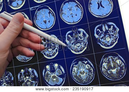 Medical Doctor Pointing With Pen To The Brain Poblem On The Mri Study Result.