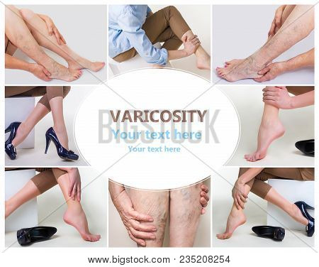 Collage About Woman In High Heels Massaging Her Tired Legs. Varicose Veins Concept. Painful Varicose